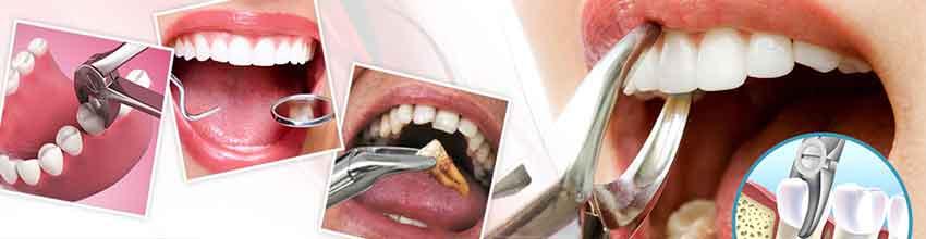 nhổ răng tại nha khoa đông nam