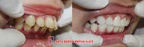 bọc răng sứ 2 hàm điều trị răng bị chìa