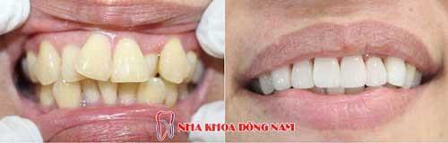 bọc răng sứ hàm trên mọc lộn xộn