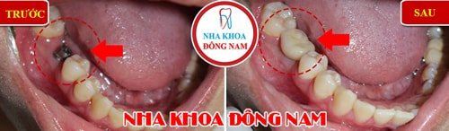 Cấy Ghép Răng Implant hàm dưới