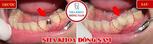 Cấy ghép implant cho trường hợp mất 1 răng hàm dưới