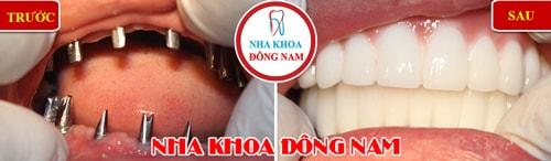Cắm ghép Implant 2 hàm răng mất