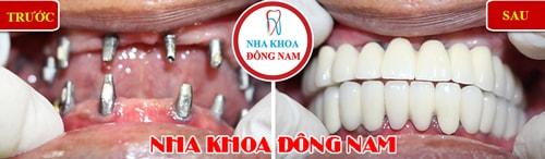 Cấy ghép Implant 2 hàm cho trường hợp mất răng toàn hàm