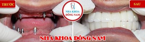 trồng răng implant 2 hàm cho trường hợp mất răng