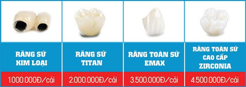 bảng giá các loại răng sứ