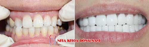 bọc 2 hàm răng sứ emax và titan 05082016