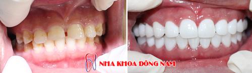 Bọc 2 hàm răng sứ cho răng bị thưa và ố vàng
