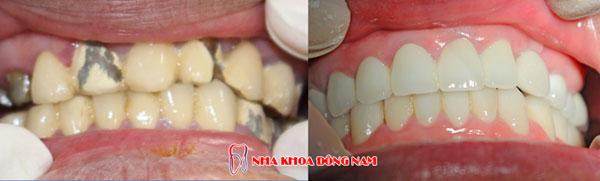bọc răng sứ 10