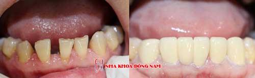 bọc răng sứ 11