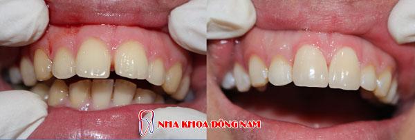 bọc răng sứ 12