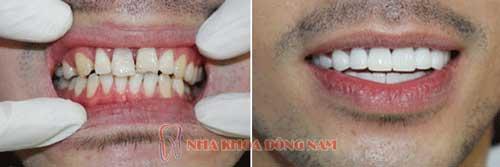 bọc răng sứ 14