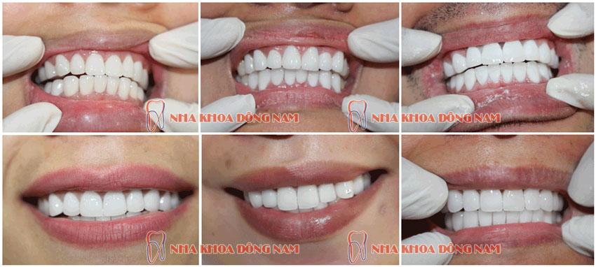 Trường hợp bọc răng sứ tại nha khoa đông nam