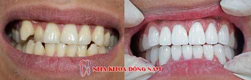 bọc răng sứ 2 hàm 2
