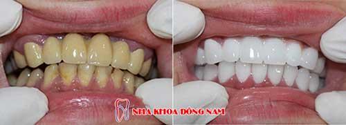 bọc răng sứ 2 hàm bị nhiểm kháng sinh