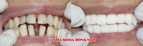 bọc răng sứ 2 hàm bị thưa