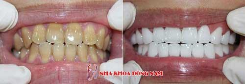 bọc răng sứ 2 hàm nhiễm kháng sinh