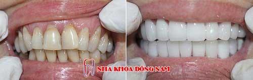 bọc răng sứ 2 hàm bị ố vàng và khuyết cổ