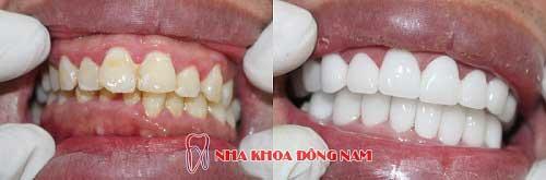 bọc răng sứ 2 hàm zirconia và titan