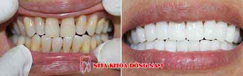 bọc răng sứ 22 cái zirconia