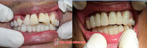 bọc răng sứ 6