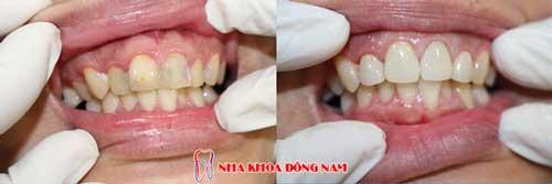 bọc răng sứ 7