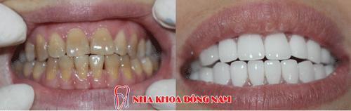 bọc răng sứ 2 hàm nhiễm kháng sinh ố vàng nặng