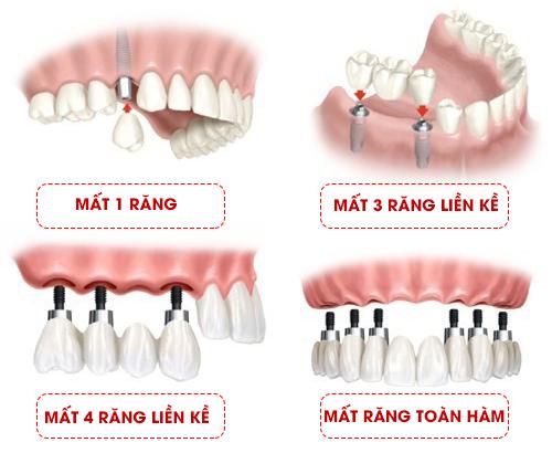 Áp dụng cho các trường hợp mất răng