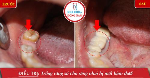 Trồng răng sứ cho răng nhai hàm dưới