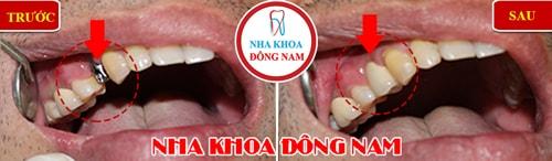 Cấy ghép Implant răng hàm