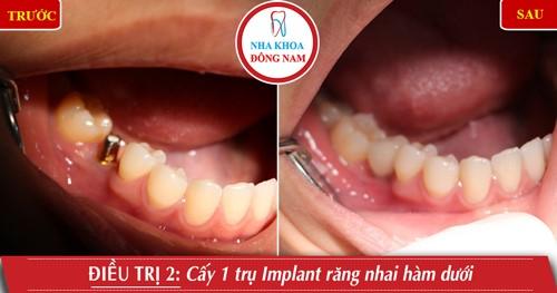 Cấy 1 trụ Implant răng hàm nhai hàm dưới