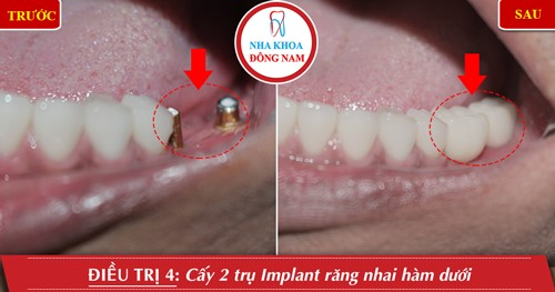 Cấy 2 răng implant răng nhai hàm dưới