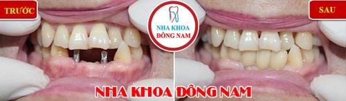 Cấy ghép Implant cho 2 răng cửa bị mất