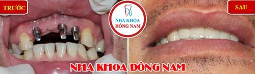 Cấy ghép implant 3 trụ gắn 4 răng cửa hàm trên