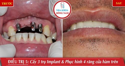 Cấy 3 trụ implant gắn 4 rang cửa hàm trên
