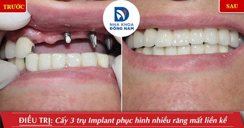 Cấy 3 trụ Implant phục hình nhiều răng mất liền kề