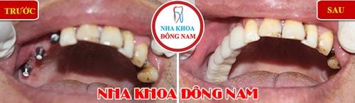 Cắm ghép implant răng hàm trên cho trường hợp mất 3 răng