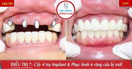 Cấy 4 trụ Implant phục hình 6 răng sứ hàm trên