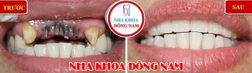 trồng răng implant cho trường hợp mất 4 răng cửa hàm trên