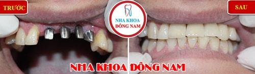 Cắm ghép Implant - Cấy 4 trụ Implant răng cửa
