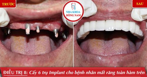 Cấy 5 trụ implant cho bệnh nhân mất răng toàn hàm trên