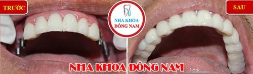 Cắm ghép implant răng hàm nhai