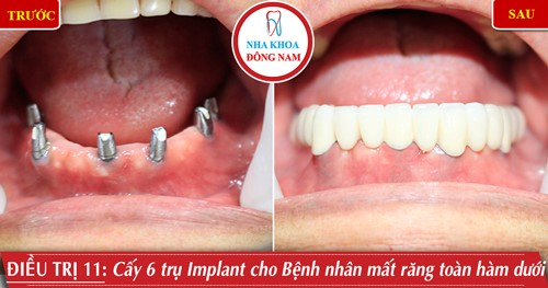 Cấy 6 trụ implant phục hình răng sứ hàm dưới