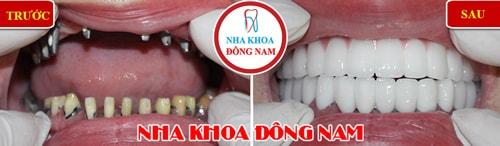 trồng răng Implant toàn hàm trên phục hình 2 hàm răng sứ