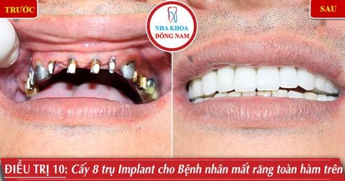 Cấy 8 trụ Implant phục hình răng sứ toàn hàm trên