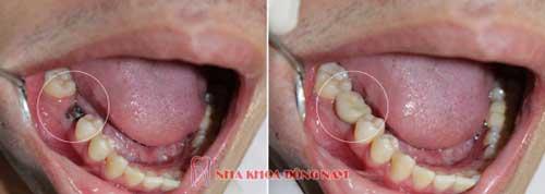 cấy ghép 1 trụ implant cho răng nhai số 6