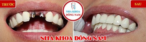 trồng răng Implant và phục hình răng sứ cho 2 răng cửa bị mất