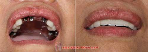 cấy ghéo 3 trụ implant răng cưa hàm trên