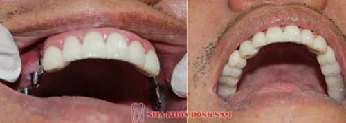 cấy ghép 6 trụ implant cho 2 hàm răng nhai bị mất