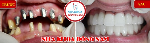 cấy ghép răng implant cho trường hợp mất 6 răng cửa hàm trên và phục hình răng sứ 2 hàm