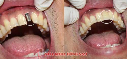 cấy ghép implant 1 răng cửa bị mất